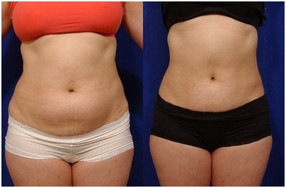 perder gordura na barriga acelerado
